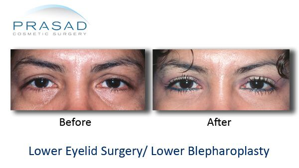 lower eyelid surgery- Puffy eyes removal