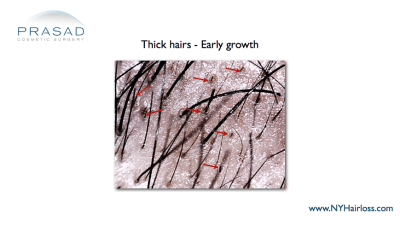 Hair regeneration-early growth-Injection