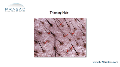 microscope images of hair thinning Dr Amiya Prasad