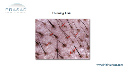 Hair thinning under microscope- Hair loss