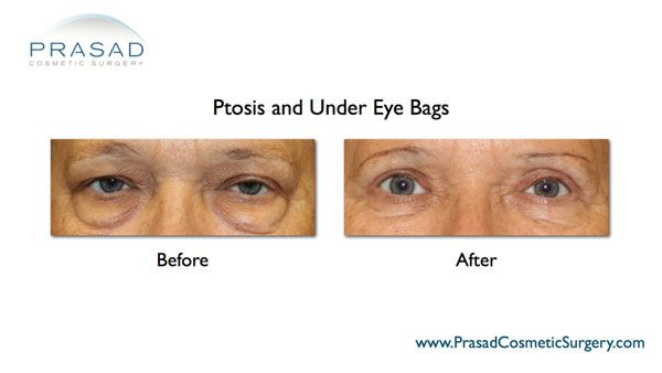 Blepharoplasty surgery-Before and After