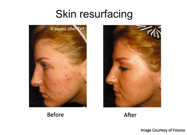 laser treatment for acne scars before and after