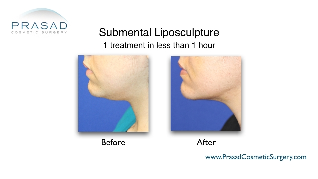 chin liposuction results performed by Dr Amiya Prasad, New York