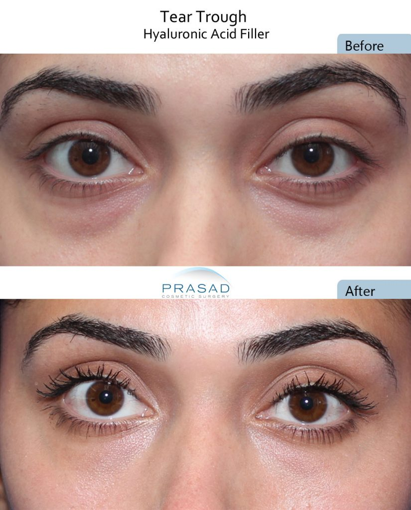 Cosmetic fillers used to camouflage mild eye bags.