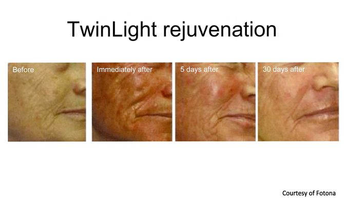 Fully ablative laser skin tightening