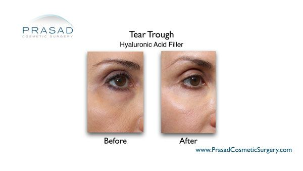 under eye filler injection before and after