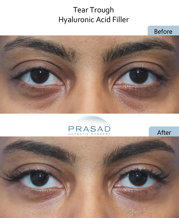 dark under eyes circles treatment with PRP and Filler