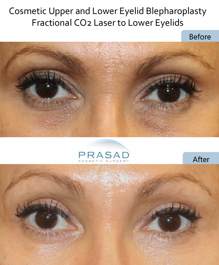 dark circles undereyes treatment with CO2 Laser