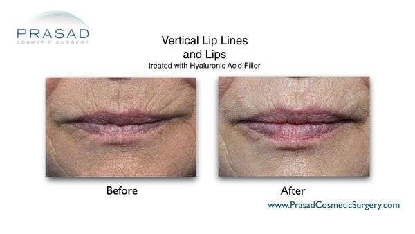 vertical lip lines and lip volume treated with lip filler