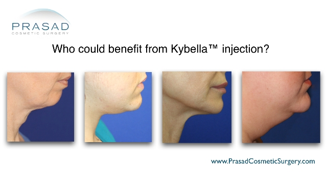 how to know if Kybella™ right for you